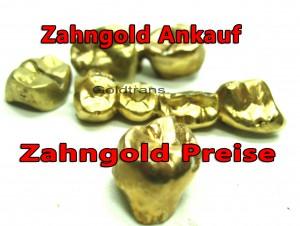 Zahngold ankauf
