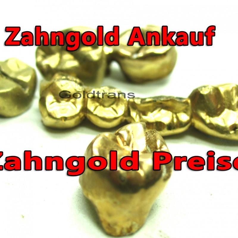 hamburg ankauf verkauf von zahngold dentalgold preise. Black Bedroom Furniture Sets. Home Design Ideas